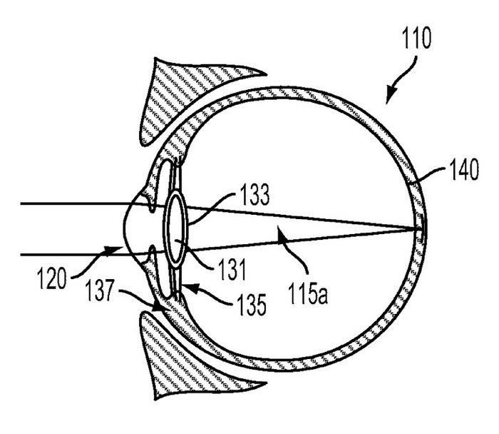 Google Intra Ocular Device Patent