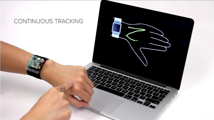 SkinTrack Technology