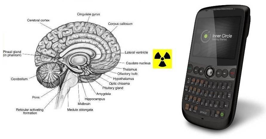Mobile Phone and Brain